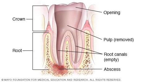 Cleaning the root canal