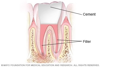 Filling the root canal