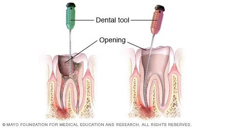 Steps in a Root Canal