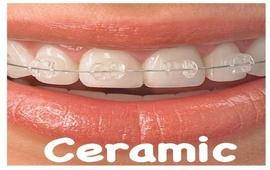 Ceramic brackets
