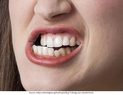 Teeth Grinding Image
