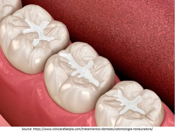 Tooth-Coloured Restorations