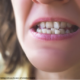Teeth Alignment Treatment